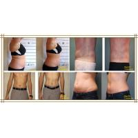 Nubway Lipo Laser Slimming Machine