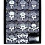 Quality 10in * 12in 11in * 14in High Density Medical Imaging Dry Films For AGFA / Fuji Printer for sale