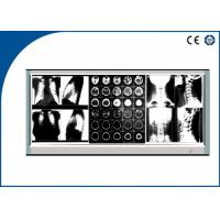 Buy 60W Triple LED X Ray Film Viewer Brightness Fixed for Medical Treatment at wholesale prices
