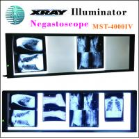Quality Upgrade LED X-ray Negatoscope Mst-4000IV Four Panels with 7 Level LED Display Brightness Control for sale