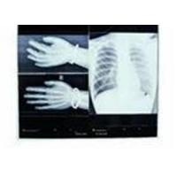Quality Konida Medical Dry Imaging Digital X-ray Film Compatible With Thermal Printer for sale