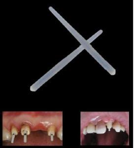 China Anti-erosion Straight Fiber Post Dental Endodontic Instruments, Gutta Percha Points on sale