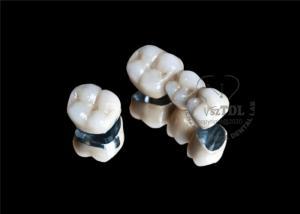 dental pfm porcelain crown for sale, dental pfm porcelain ...