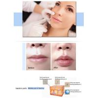 TOP-Q Super Derm Line 2CC Lip Dermal Filler hyaluronic acid filler injections to buy