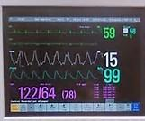 Quality 12.1 Inch Capacitive Medical Touch Screen G+G Material 3840 * 2160 Resolution for sale