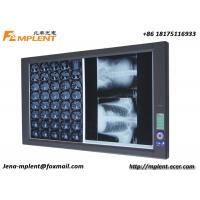 China Brightest X Ray Film Viewer Digital Double LED Negatoscope with LCD Displayer on sale