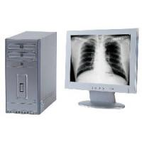 China X-ray Film Digitizer on sale