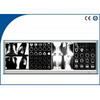 Quality Brightness Fixed LED Medical Film Negatoscope , Four LED Screen Film Viewer for sale
